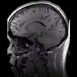 תמונת MRI של המוח במנח סגיטלי (כולל ארטיפקט בשם התקפלות)