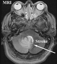 סריקת MRI (סקן T2) אשר מדגימה שבץ הנגרם מקריש דם