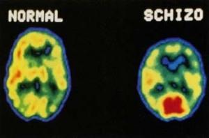 הבדלים בסריקת PET בין מוח אדם בריא למוח אדם הלוקה בסכיזופרניה