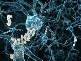 חלבונים במוח באלצהיימר