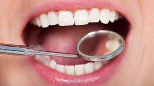 סתימות בשיניים